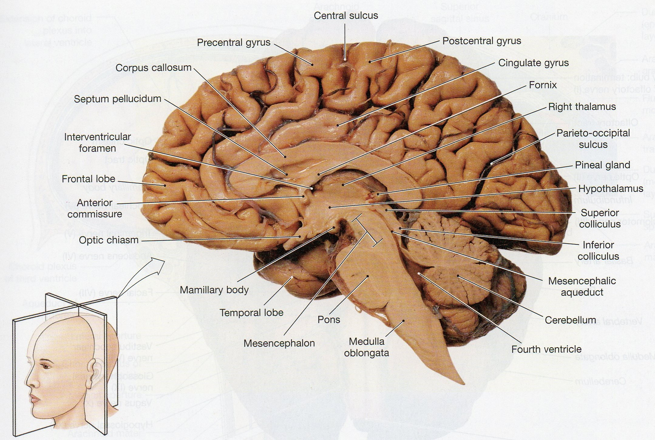 Physiological Psychology Inside Sheep Brain Dissection Worksheet