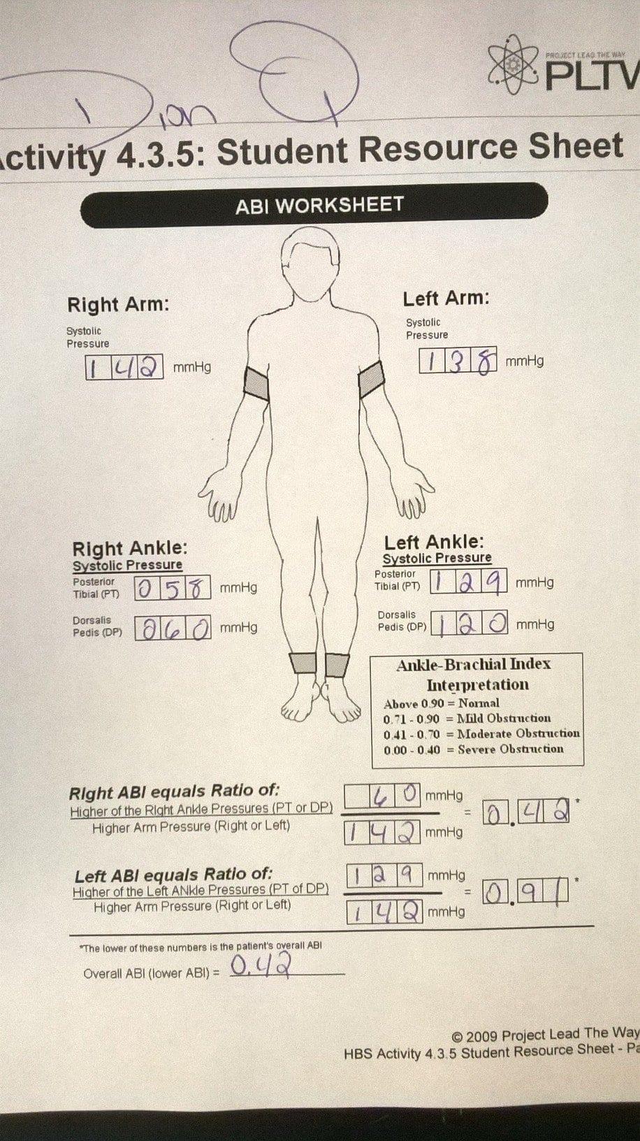 Hbs Regarding Ankle Brachial Index Worksheet